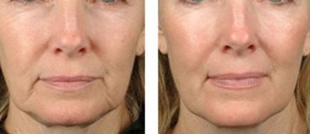 Platelet Rich Plasma Skin Treatment