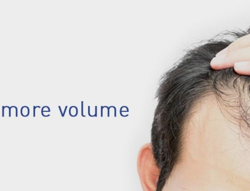 Is Platelet Rich Plasma Good for Hair Loss Treatment?