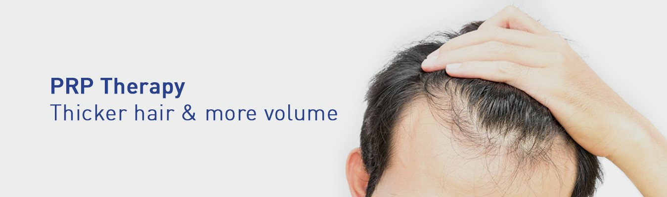 Is Platelet Rich Plasma Good for Hair Loss