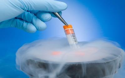 Cryopreserved Bone Marrow Mononuclear Cells